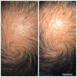 薄毛・ハゲ・抜け毛改善がDNA解析でオリジナルプログラム
