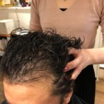 薄毛・ハゲ・抜け毛対策に頭皮活性マッサージ